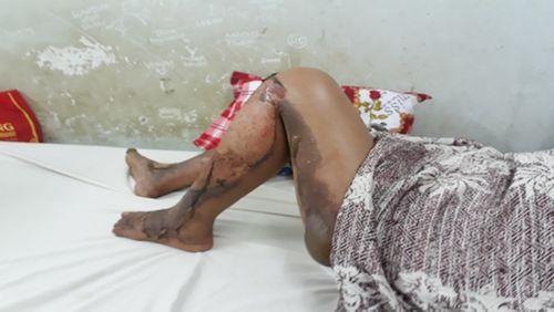 Vụ con rể phóng hỏa đốt nhà, 3 người bị bỏng: Lời kể đau xót của người vợ - Ảnh 3