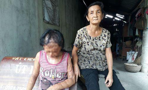 Gia đình tử tù Nguyễn Hữu Tình lên tiếng vụ xin đôi mắt cho bé gái bị tạt axít - Ảnh 1