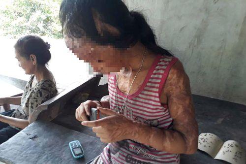 Gia đình tử tù Nguyễn Hữu Tình lên tiếng vụ xin đôi mắt cho bé gái bị tạt axít - Ảnh 3