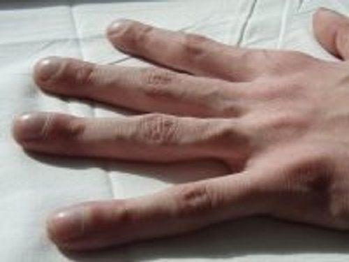 Cảnh báo các bệnh nguy hiểm qua dấu hiệu bất thường ở móng tay - Ảnh 3