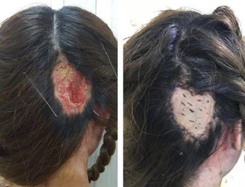 Một phụ nữ 47 tuổi tử vong sau khi nhuộm tóc 10 ngày - Ảnh 2