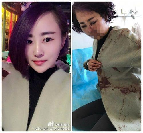 Xôn xao vụ người mẫu trẻ bị 12 người đàn ông hành hung - Ảnh 1