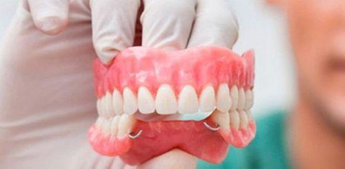 Hy hữu: Nuốt nhầm hàm răng giả, cụ ông suýt mất mạng - Ảnh 2