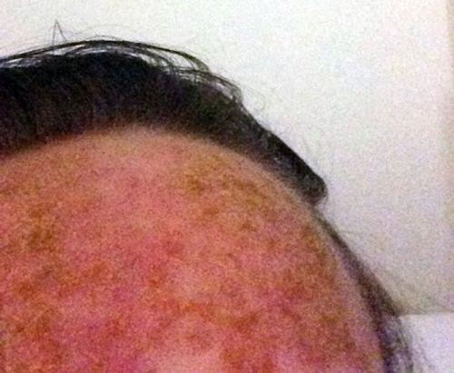 Cô gái trẻ vật lộn giữa sự sống và cái chết sau khi nhuộm tóc - Ảnh 4