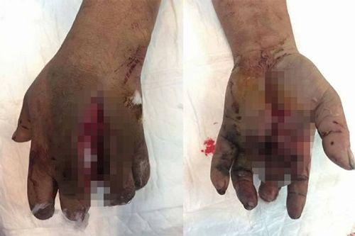 Pin sạc điện thoại phát nổ, người đàn ông bị dập nát bàn tay - Ảnh 1