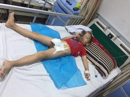 Nguyên nhân khiến 80 trẻ bị mắc sùi mào gà ở Hưng Yên - Ảnh 1
