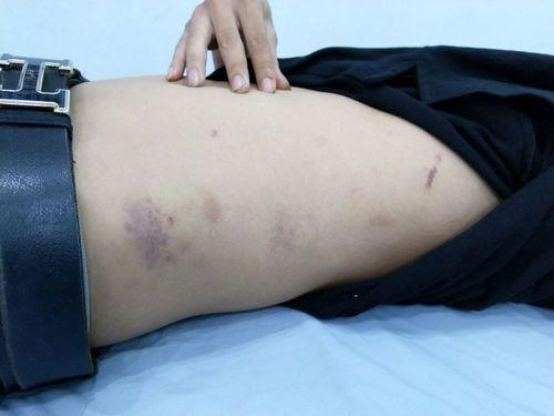 Công an Hải Phòng lên tiếng về việc bị tố cáo đánh người vi phạm - Ảnh 2