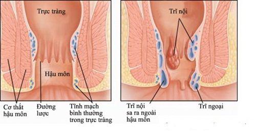Kỹ thuật mới chữa trị trĩ hiệu quả, không đau, không cần phẫu thuật - Ảnh 1