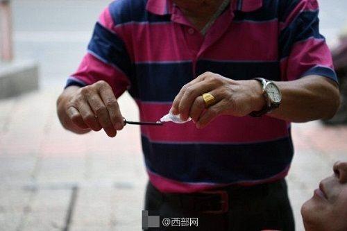 Kinh hãi người đàn ông dùng dao cạo làm sạch mắt cho khách - Ảnh 3