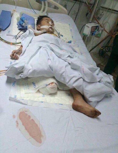 Hơn 70 triệu đồng đến với bé trai 5 tuổi phải cưa một chân sau tai nạn  - Ảnh 3