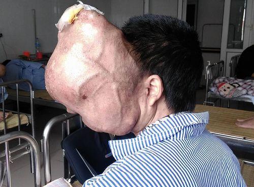 """Khối u """"ăn"""" não, người đàn ông đau đớn đợi phẫu thuật - Ảnh 3"""