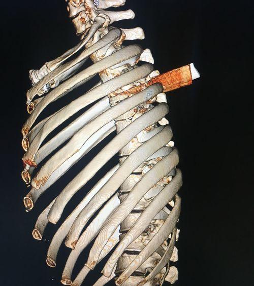 Lấy lưỡi dao gần 6 cm đâm thấu ngực bệnh nhân - Ảnh 1