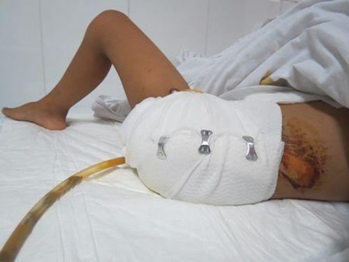 Cắt chân sau khi bỏ viện về chữa thầy lang - Ảnh 1