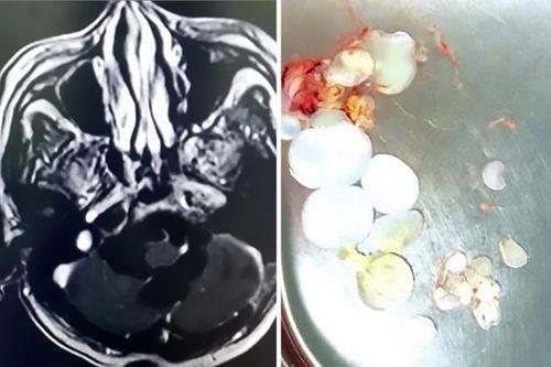 Lúc nhúc 30 trứng sán dây trong não - Ảnh 1