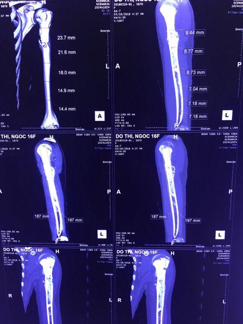 Đau nhức xương khớp kéo dài, không ngờ cô gái 16 tuổi bị ung thư xương - Ảnh 2