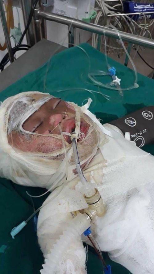 Đau lòng bé 2 tuổi ngã vào hố vôi đang sôi sùng sục, nguy cơ hỏng mắt - Ảnh 2