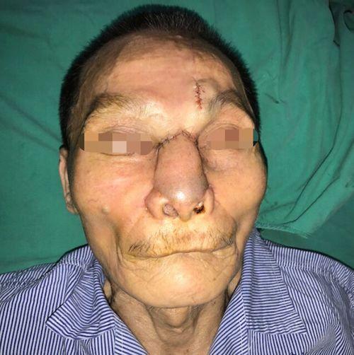 Khối u nguy hiểm trên mặt được bác sĩ phẫu thuật kịp thời - Ảnh 2