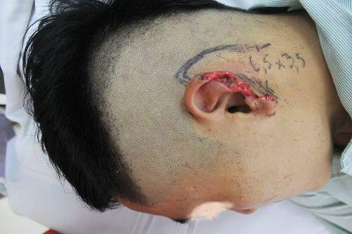 Bị cắn đứt vành tai bên trái khi đang nhậu với bạn - Ảnh 1