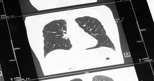 9 căn bệnh gây tử vong nhiều nhất trên thế giới - Ảnh 1