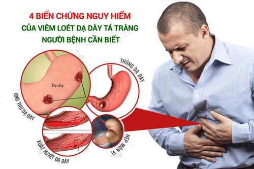 Những điều cần biết về bệnh viêm loét dạ dày - Ảnh 2