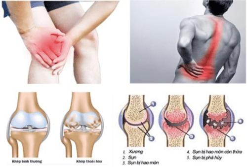 Bệnh xương khớp: Nguyên nhân và triệu chứng - Ảnh 1