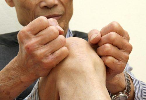 Cách chữa đau nhức xương khớp tại nhà đơn giản, hiệu quả - Ảnh 1