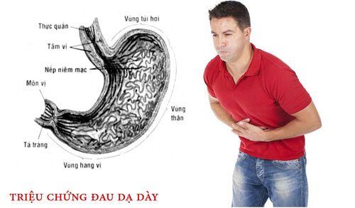 4 triệu chứng đau dạ dày nhẹ cần biết để chữa kịp thời - Ảnh 1