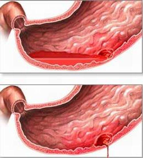 Đau dạ dày cấp: Cách xử lý để không thành mãn tính - Ảnh 2
