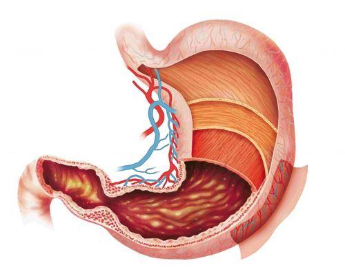 Đau dạ dày cấp: Cách xử lý để không thành mãn tính - Ảnh 1