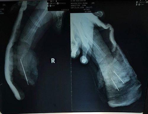 Bé 2 tuổi bị dây xích xe máy cắt đứt lìa bàn tay  - Ảnh 1