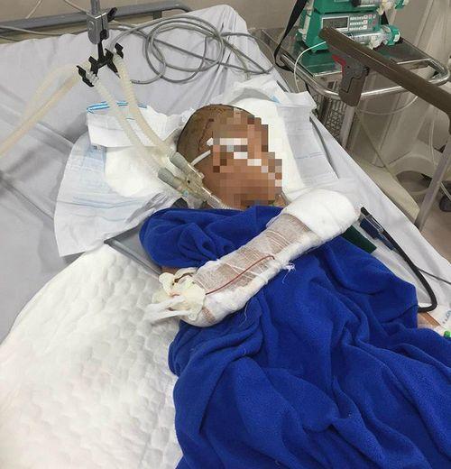 Bé trai 9 tuổi bị nam thanh niên chém liên tục vào đầu - Ảnh 1