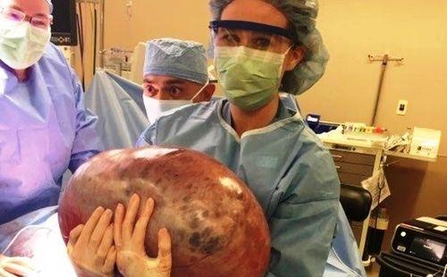 Hốt hoảng khi loại bỏ khối u buồng trứng nặng 22 kg  - Ảnh 1