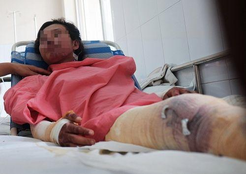 Tin tức đời sống mới nhất ngày 1/8/2018: Hai mẹ con suýt chết vì nuốt rết sống chữa bệnh - Ảnh 2