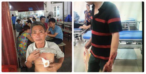 Hà Nội: 5 người cùng nhà bị truy sát phải nhập viện - Ảnh 1