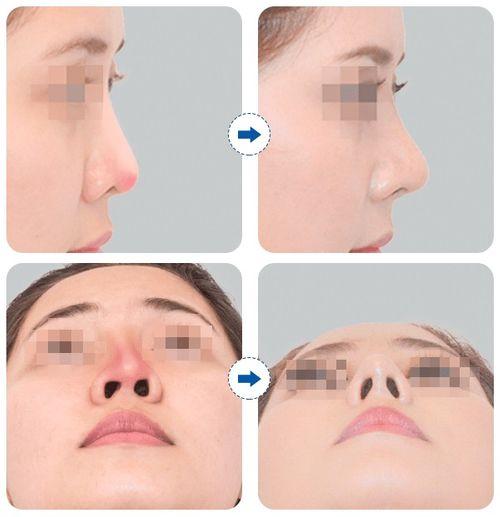 Nâng mũi, sửa lại sụn thế nào để được như ý - Ảnh 1