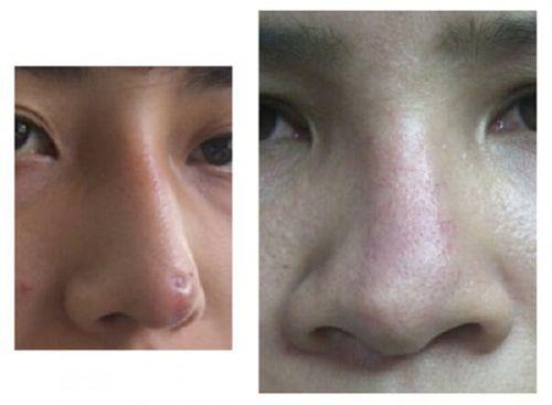 Nâng mũi, sửa lại sụn thế nào để được như ý - Ảnh 2