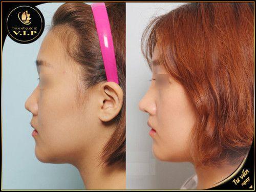 Mũi tẹt có ảnh hưởng đến cuộc sống của bạn không? - Ảnh 6