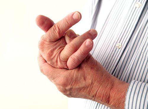 Cứng khớp – triệu chứng không thể coi thường - Ảnh 2
