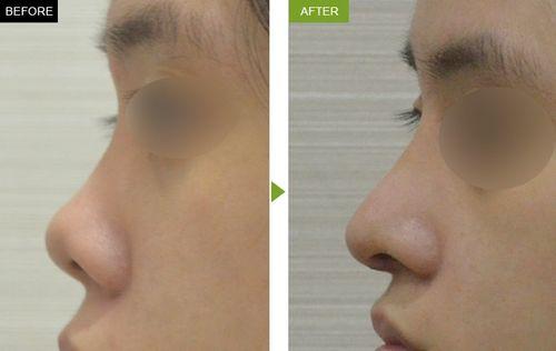 Bật mí hai phương pháp sửa mũi hếch - Ảnh 1