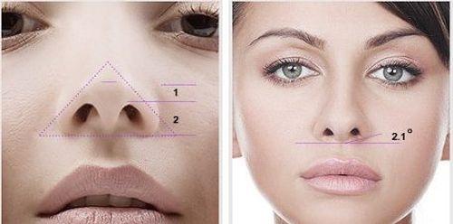 Bật mí hai phương pháp sửa mũi hếch - Ảnh 3