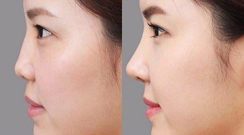 Bật mí hai phương pháp sửa mũi hếch - Ảnh 5