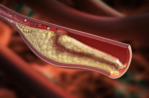 Chi phí điều trị mỡ máu cao gấp 40 – 50 lần so với bệnh truyền nhiễm - Ảnh 1