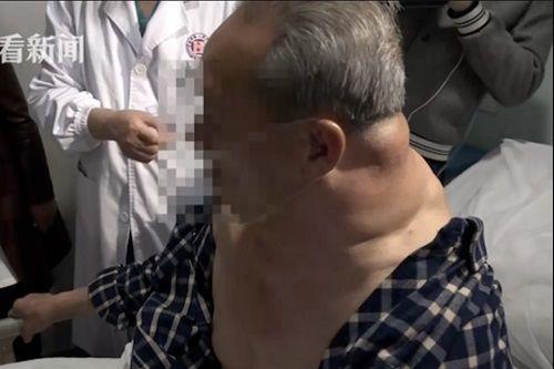 Mỗi ngày uống 1 lít rượu trong 25 năm, người đàn ông Trung Quốc 'biến dạng' - Ảnh 1