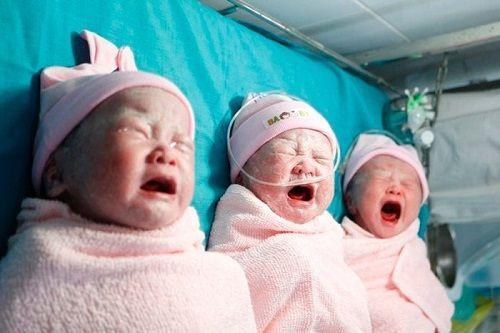 Phẫu thuật thành công cho trường hợp sản phụ mang tam thai có vết mổ cũ - Ảnh 2