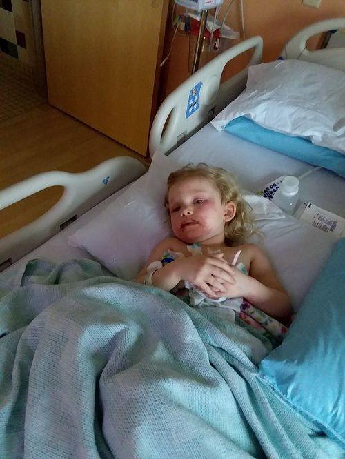 Bà mẹ kinh hãi chia sẻ hình ảnh của con gái 3 tuổi bị phồng rộp do dị ứng với đồ trang điểm rẻ tiền - Ảnh 5