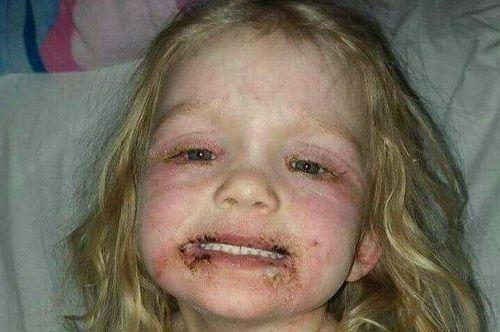 Bà mẹ kinh hãi chia sẻ hình ảnh của con gái 3 tuổi bị phồng rộp do dị ứng với đồ trang điểm rẻ tiền - Ảnh 1