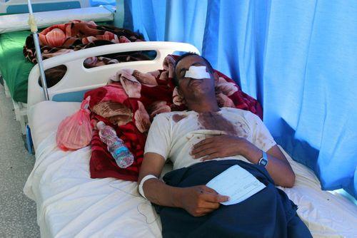 Yemen: Saudi Arabia thả bom nhầm, hàng chục người thương vong   - Ảnh 2
