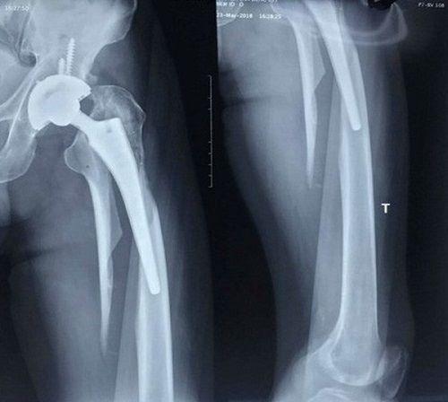 Phẫu thuật thành công thay lại khớp háng cho bệnh nhân 63 tuổi  - Ảnh 1