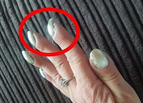 Người phụ nữ phát hiện bị ung thư phổi nhờ đi khám móng tay - Ảnh 1