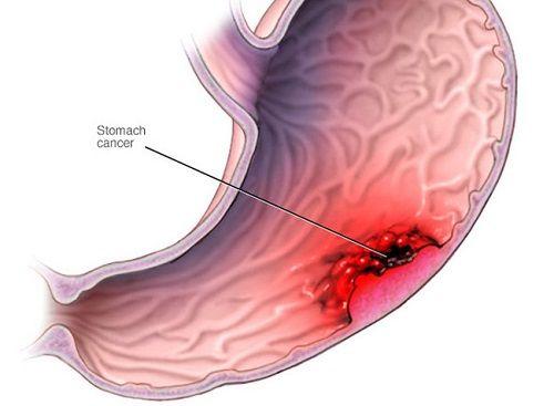 Tăng nguy cơ mắc ung thư dạ dày vì thói quen ăn mặn - Ảnh 1